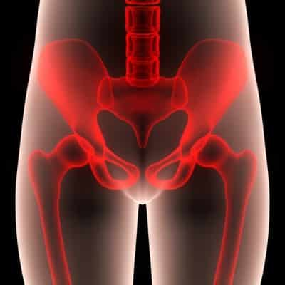 What is Sacroiliac joint dysfunction?